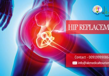 Best Hip Replacement Doctor and Hospital in India 10