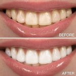 Permanent Cure For Bad Breath, Mouth Odor & Tooth Decay 3
