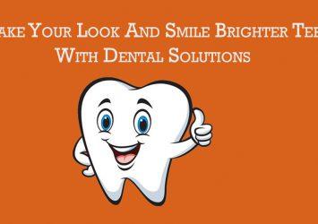 Veneers Dental Implants 25