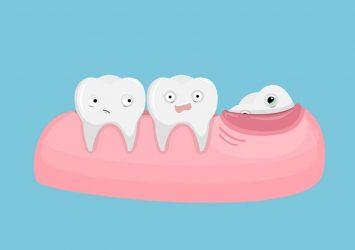 Wisdom Teeth Extraction 5