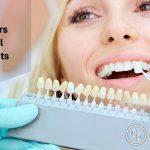 Veneers Dental Implants 3