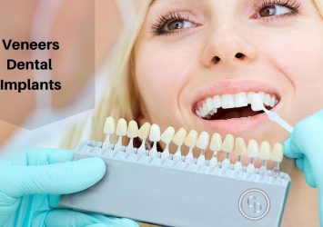 Veneers Dental Implants 11