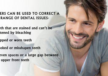Dental Veneers In Wellington 17