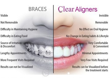 Clear Aligners 22